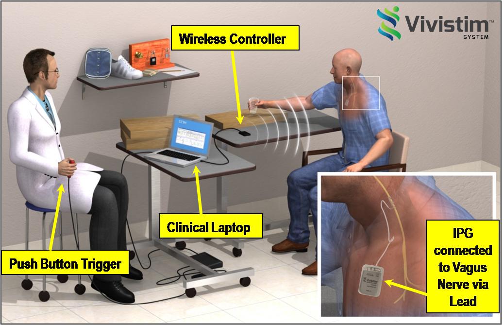 図:迷走神経電気刺激